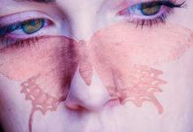 lupus butterflyface