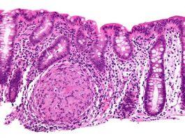 Crohns colon biopsy