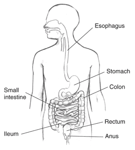Crohn's Disease, Conditions Caused by Crohn's Disease