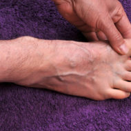 13 Facts About Gout: Causes, Symptoms, and Treatment