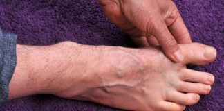 facts about gout
