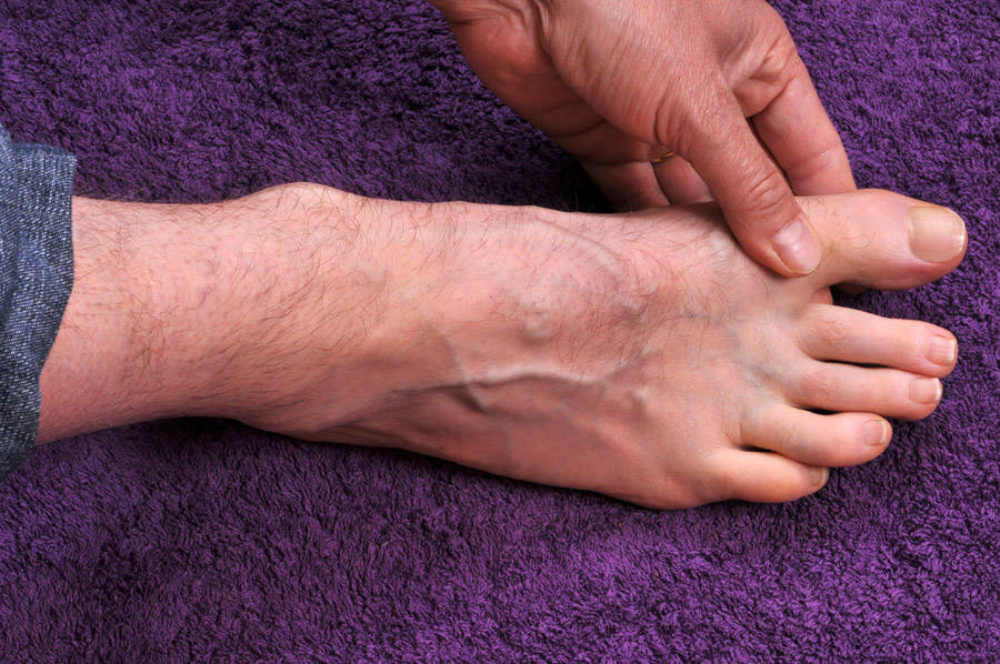 facts about gout, 13 Facts About Gout: Causes, Symptoms, and Treatment