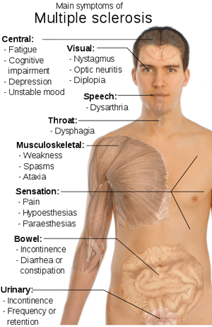 multiple sclerosis, Peripheral Neuropathies: Multiple Sclerosis