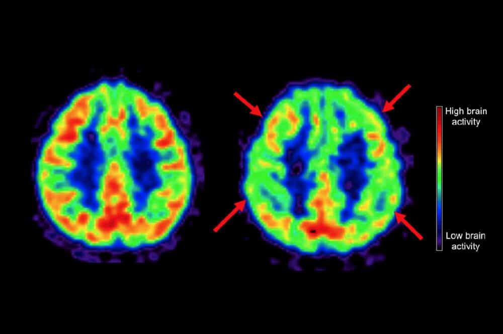 bran scan alzheimers mediterranean diet