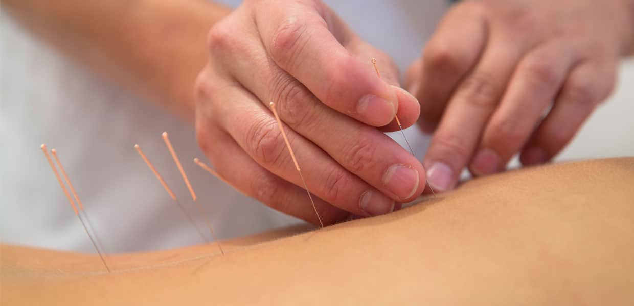 Acupuncture Treatment for Chronic Pain