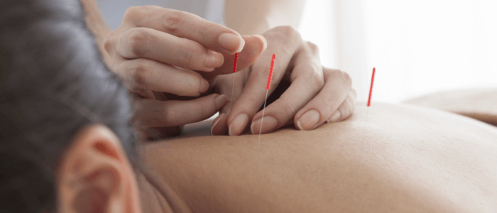 acupuncture for chronic pain