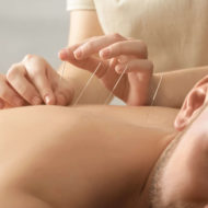 Should I try Acupuncture for Pain Management?