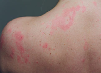 chronic rash