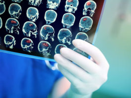 new brain implant for Parkinson's Disease