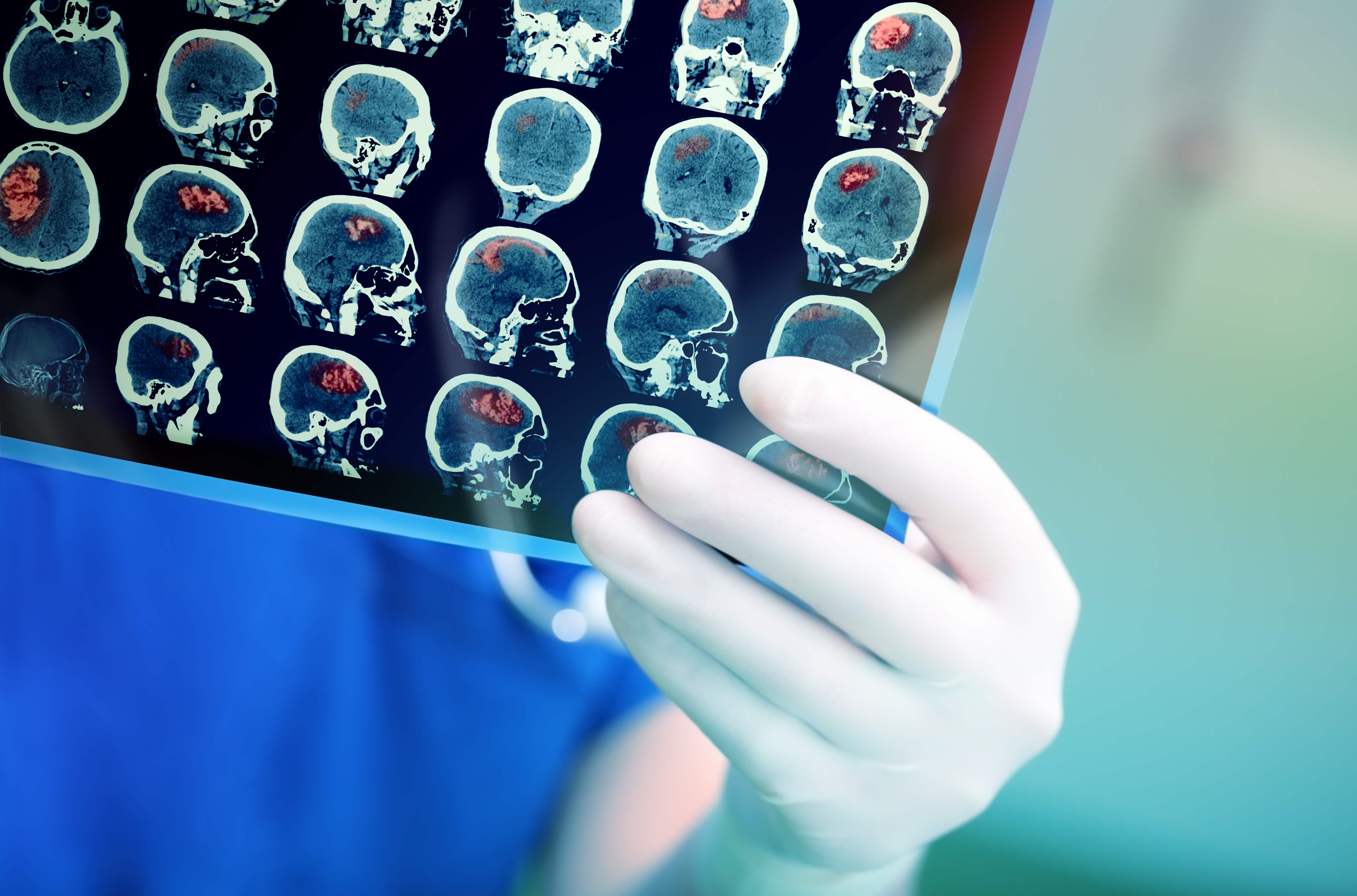 Self-Tuning Brain Implant May Help with Parkinson's Disease