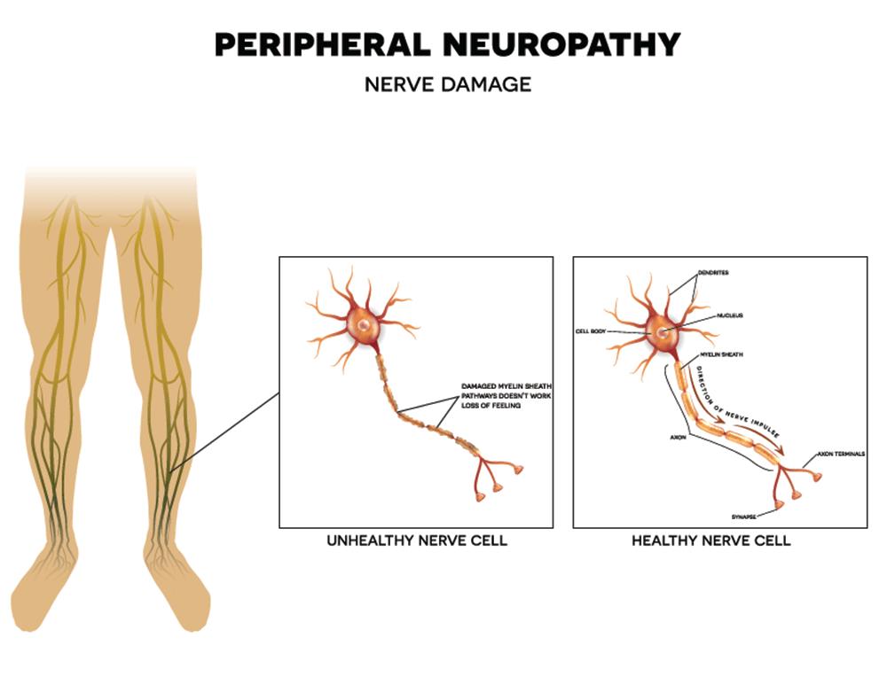 peripherial-neuropathy