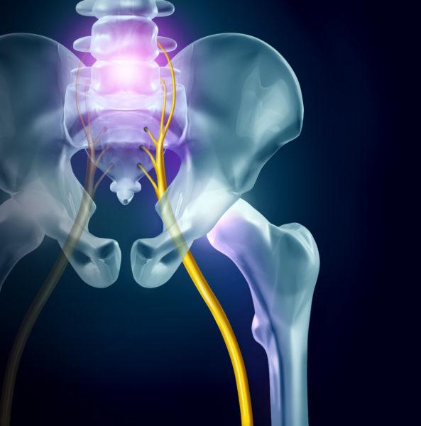 Treat Sciatica Symptoms sciatic nerve pain