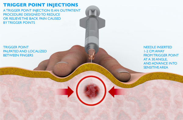 How trigger point injections for fibromyalgia sufferers work