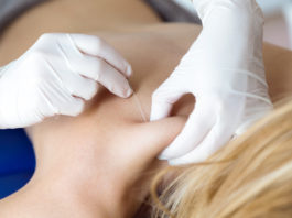 Woman getting trigger point injections for fibromyalgia