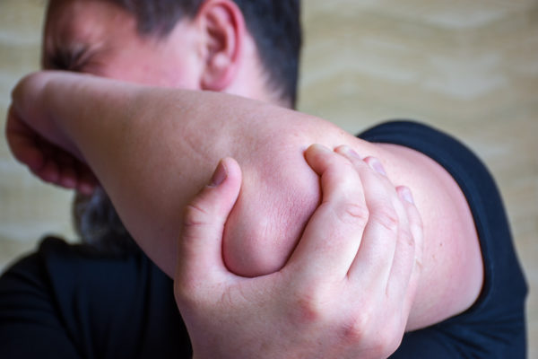 rheumatoid arthritis elbow pain with RA