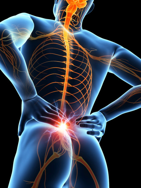 Innovations in Pain Management spinal cord stimulation