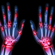 Watch Out for Sneaky Early Warning Signs of Rheumatoid Arthritis