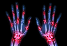 early warning signs of rheumatoid arthritis