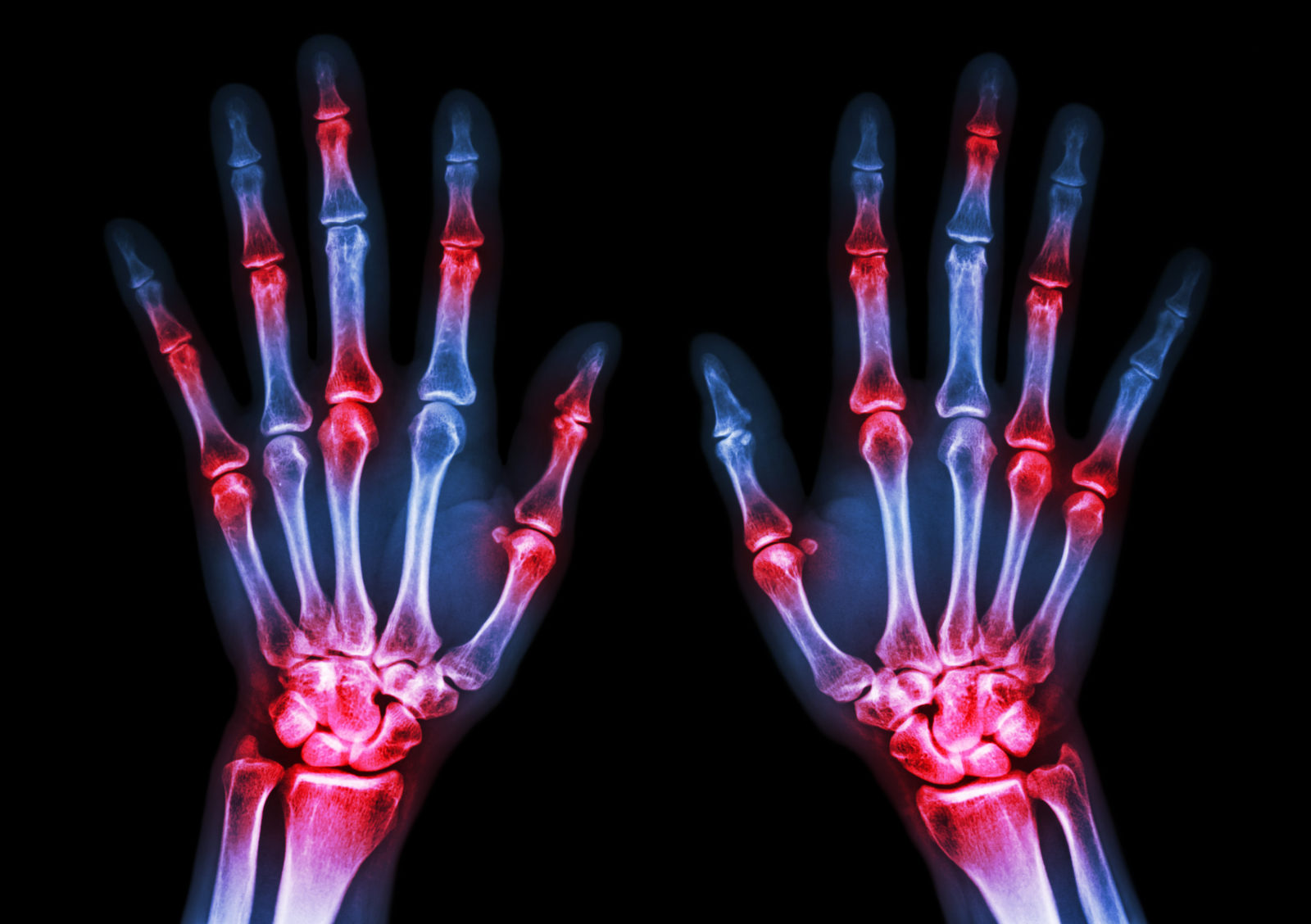 early warning signs of rheumatoid arthritis, Watch Out for Sneaky Early Warning Signs of Rheumatoid Arthritis