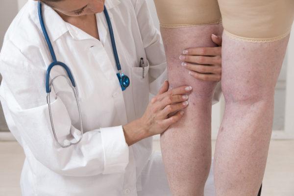 rheumatoid arthritis leg pain