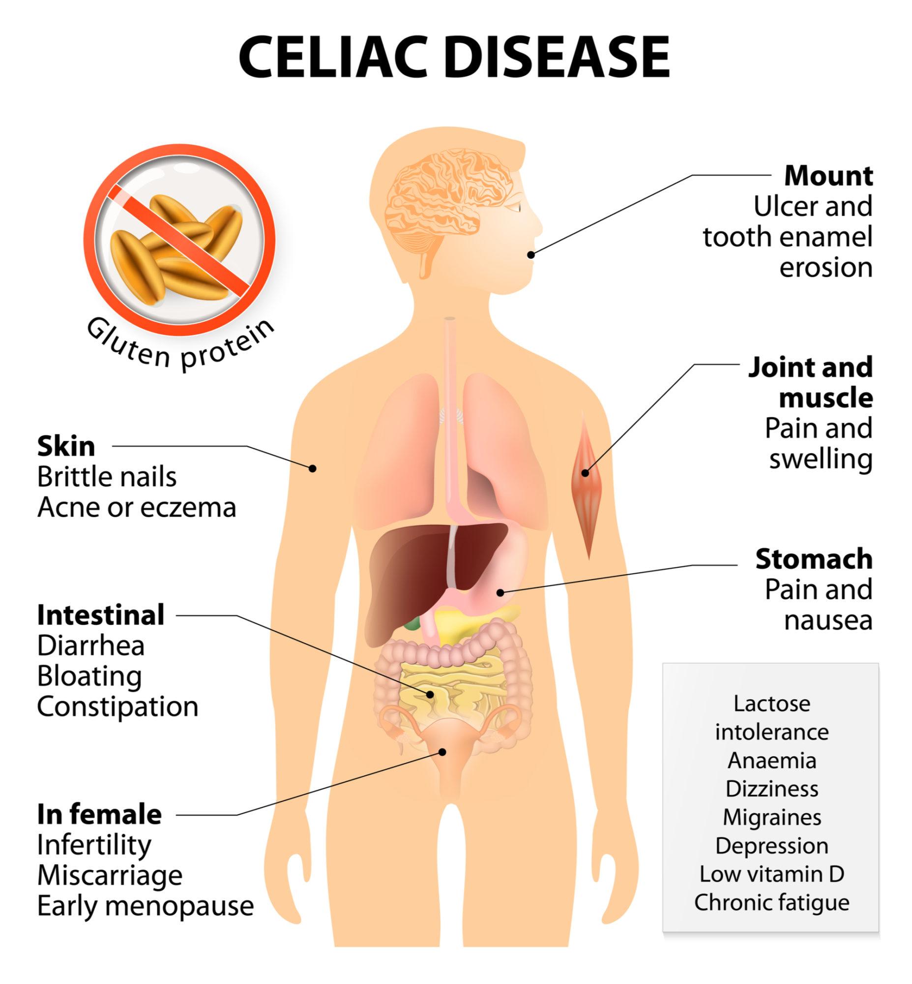 celiac disease infog