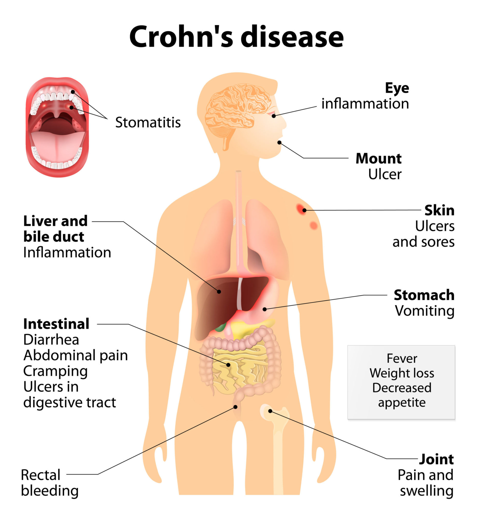 conditions caused by crohns