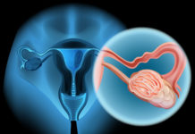 Ovarian Cancer and Back Pain