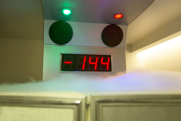 temperature for cryo chamber