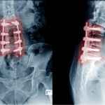 Degenerative Disc Disease: The 21-Year-Old With A 90-Year-Old Spine