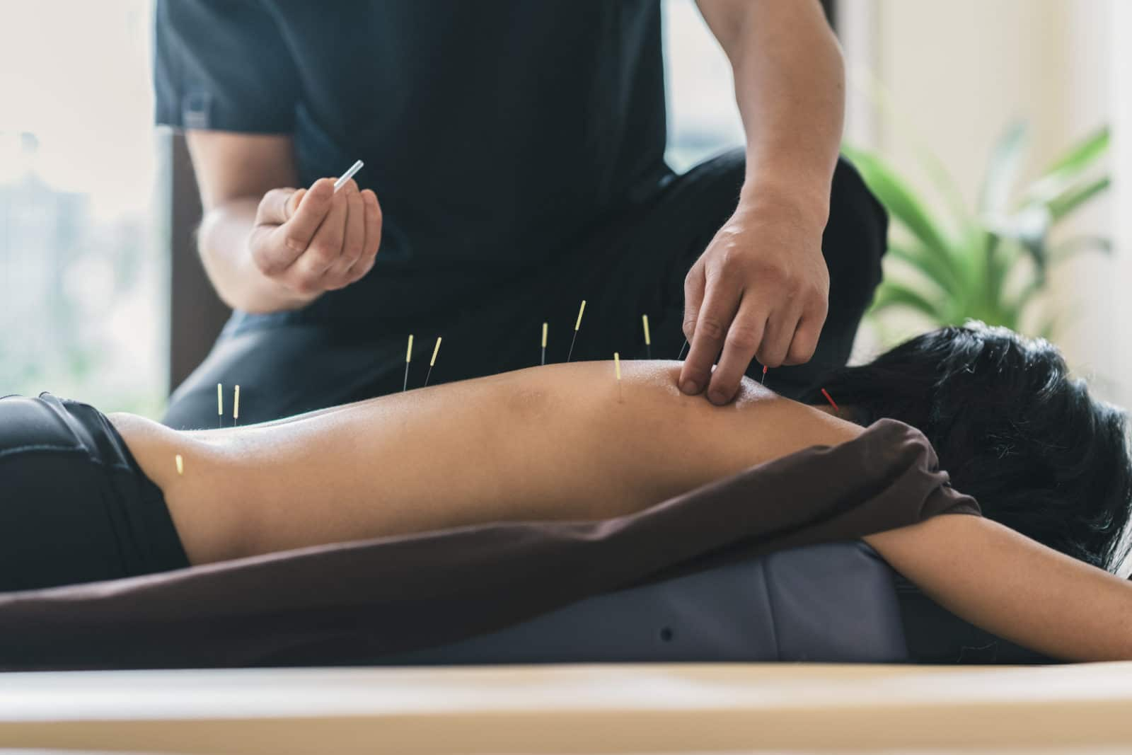 Quick Guide to Acupuncture for Back Pain