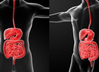 how to manage crohn's disease