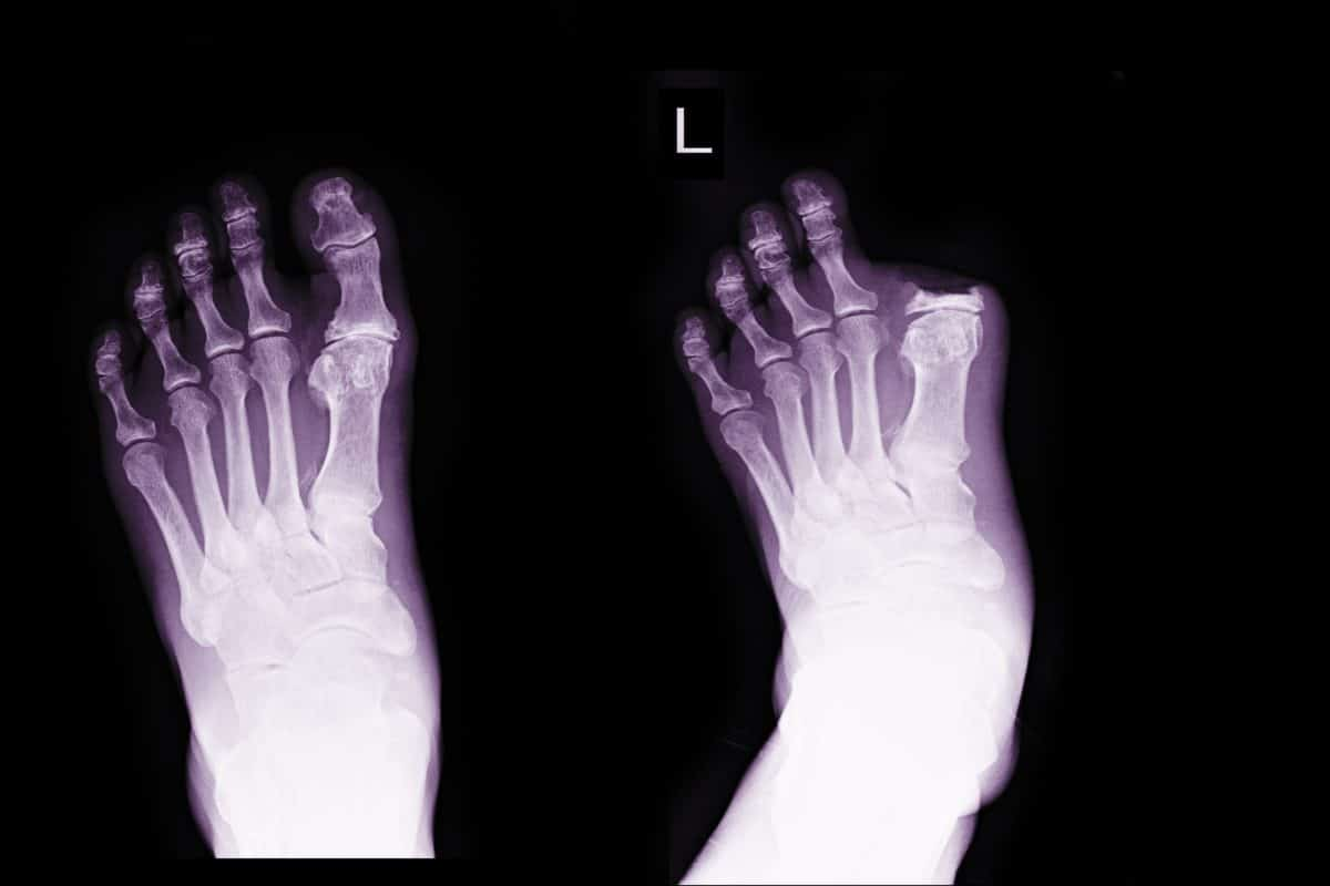 Manage Phantom Limb Pain x-ray of amputated big toe