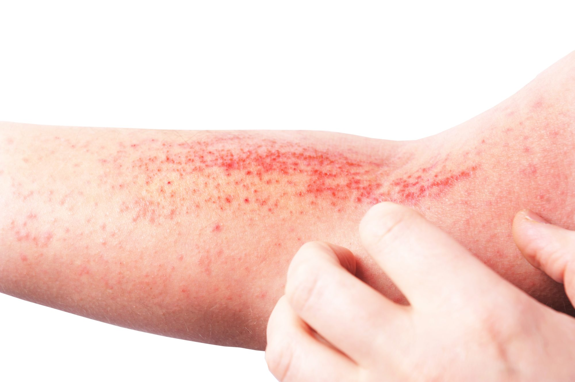 skin sensitive to touch psoriasis and psoriatic arthritis